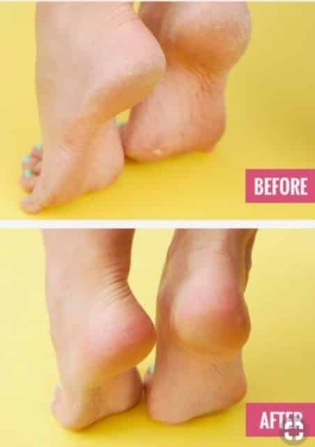 How To Have Baby-Soft Feet